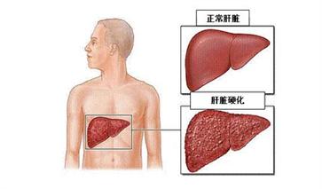 吴孟达罹患肝癌 养肝护肝的方法要注意