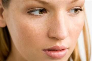 长黄褐斑应该怎么调理 女性长黄褐斑的调理方法